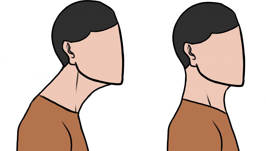 Diagram of forward head posture (FHP)